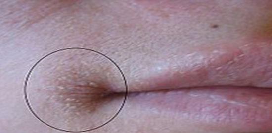 Herpes bocca Vivilanotizia